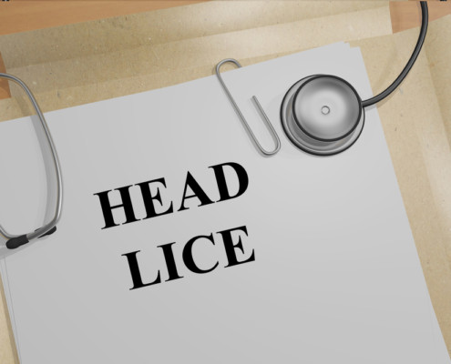 CDC-head-lice